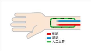 人工血管内シャント